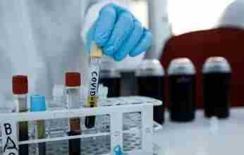 Το ΚΚΕ ζητά διαφάνεια στην αντιμετώπιση της πανδημίας